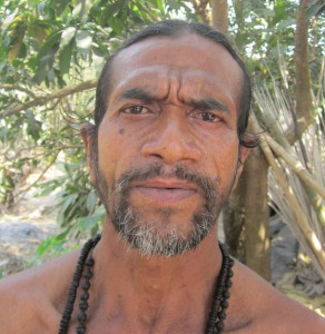 Subhas Mondal, a farmer from West Bengal, used to suffer from bilateral cataracts.