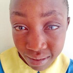 Zelma suffered from an eye disease called vernal kerato-conjunctivitis.
